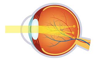 Astigmatism Treatment in Hapeville, Atlanta, GA