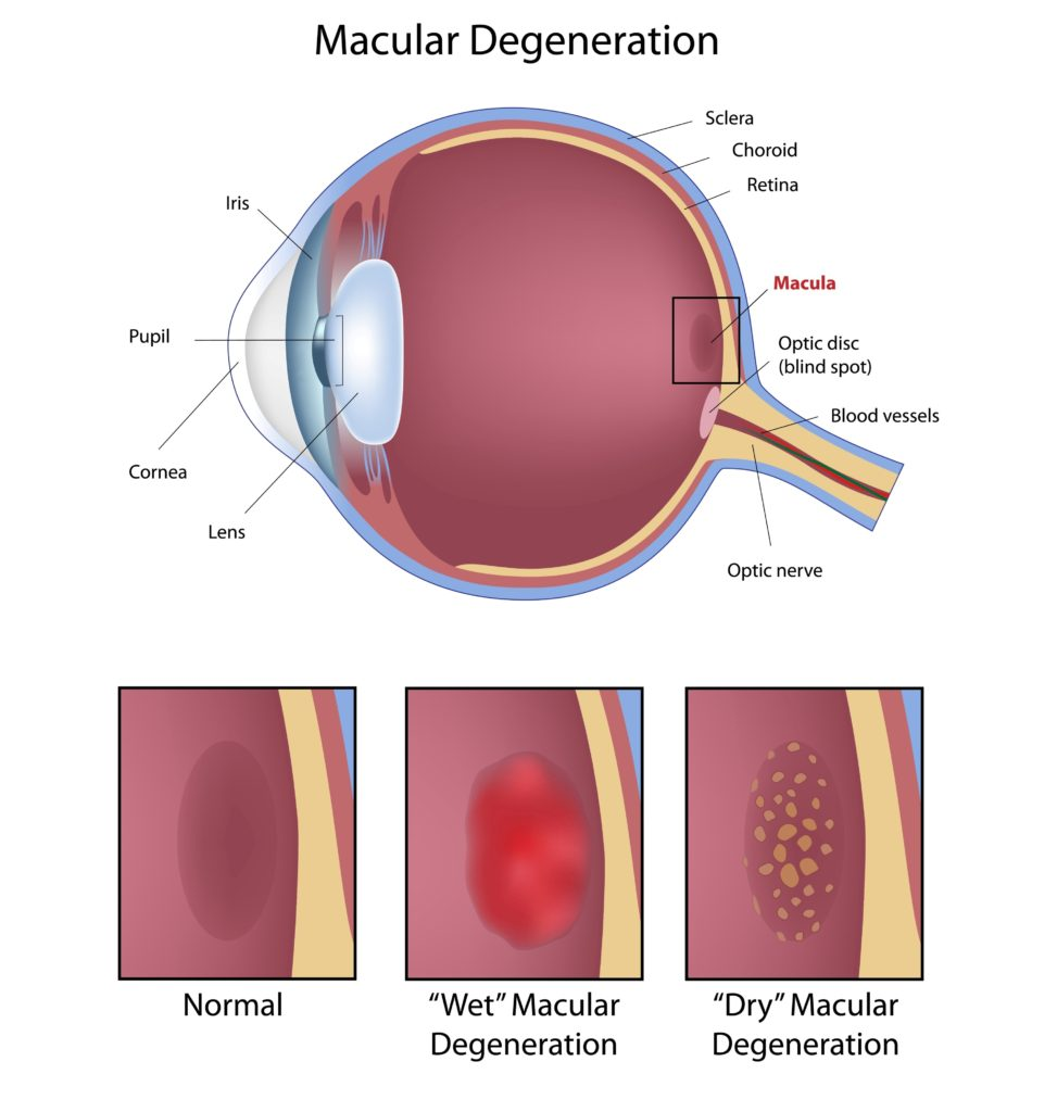 Dry and Wet Macular Degeneration (AMD) Infographic